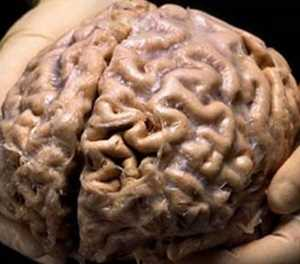 Women's brains appear 'years younger' than men's: study