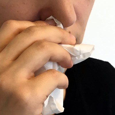 What you need to know about acute sinusitis