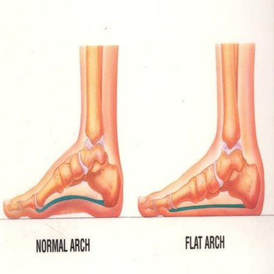Flatfoot And Its Effect On Your Body Mossel Bay Advertiser