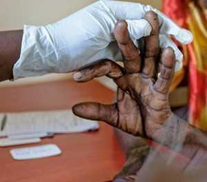 Take precautions against malaria this long weekend