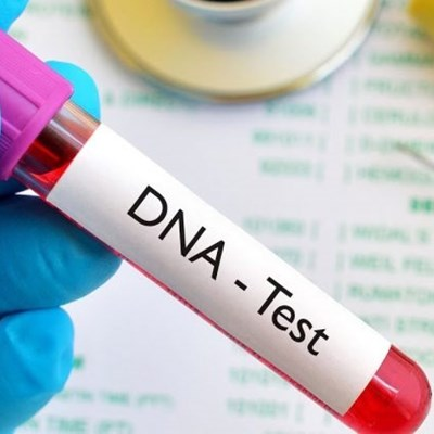 Saps' forensic DNA system has been down since June 2020, says lobby group