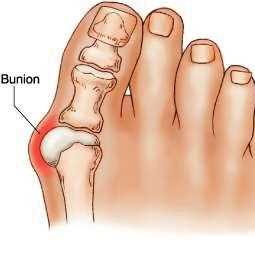 Foot ailments: Bunions