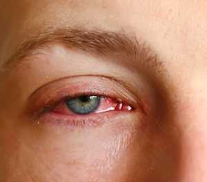 Conjunctivitis: What you should know