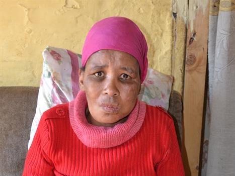 Slagoffer in rolstoel, aanrander kry 8 jaar