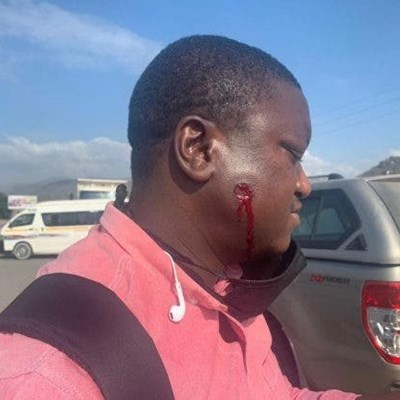 Journo details moment rubber bullet hit his face during taxi uproar