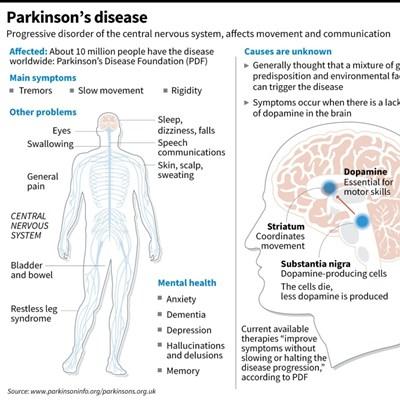 Japan team transplants stem cells into brain to treat Parkinson's