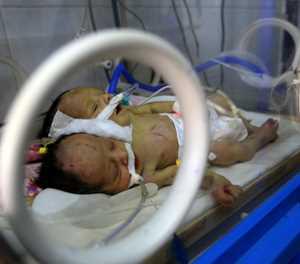 Yemeni conjoined twins die in blockaded Sanaa: Rebels