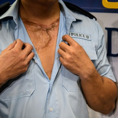 No regrets: wounded Hong Kong police vow to keep enforcing law
