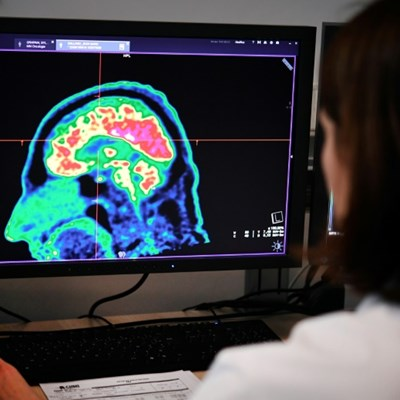 AI matches human brain cancer diagnosis: study