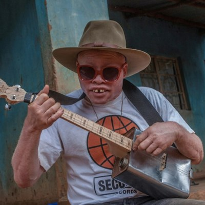 Malawi's albino busker ready for world stage
