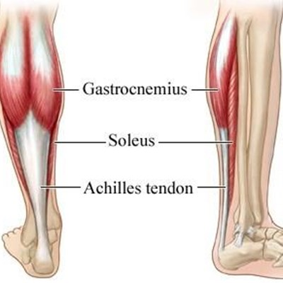 injury to the achilles tendon george herald