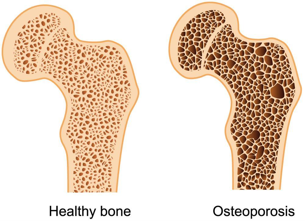 Love your bones | George Herald