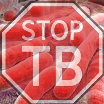 What you need to know about TB