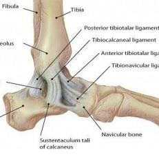Ankle injuries: Eversion sprains