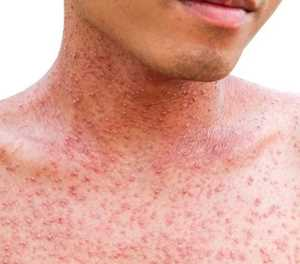 Global measles cases triple year-on-year: WHO