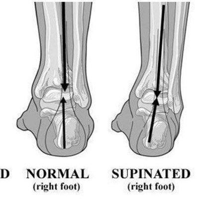 More about pronation of the foot | George Herald